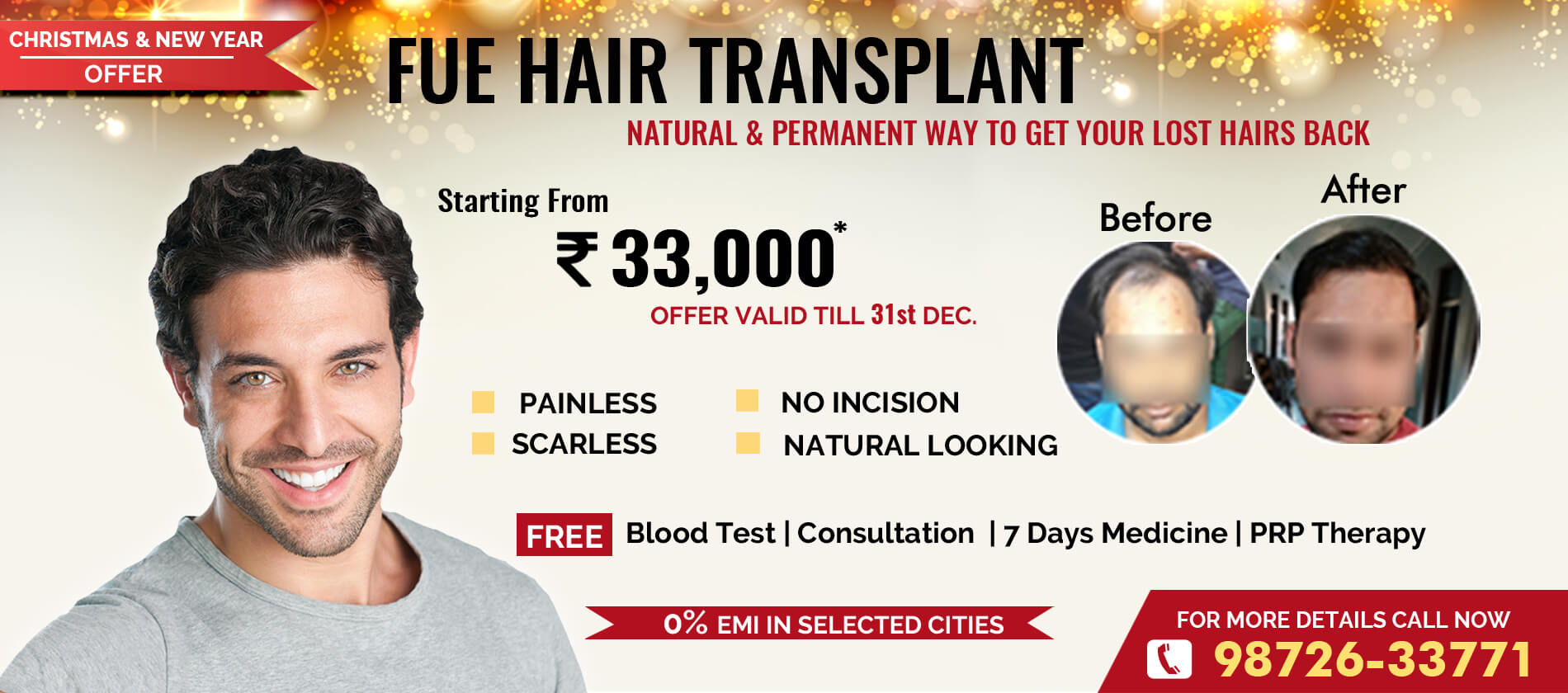 Hair Transplant in Noida