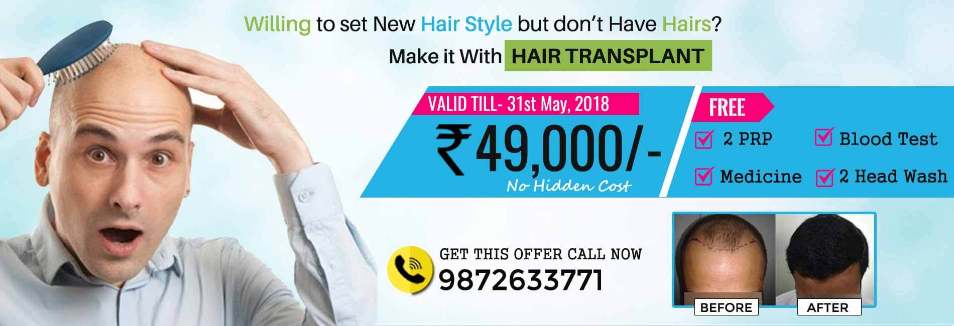 Hair transplant cost in india surat