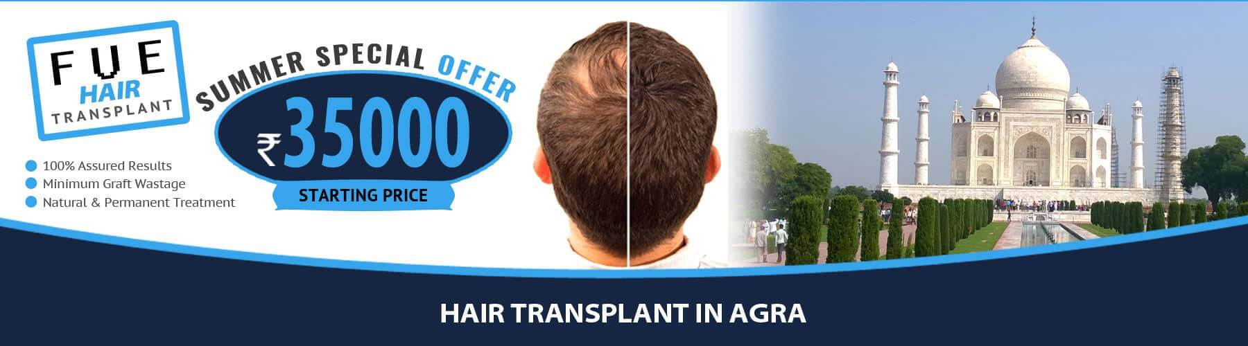Hair Transplant Agra