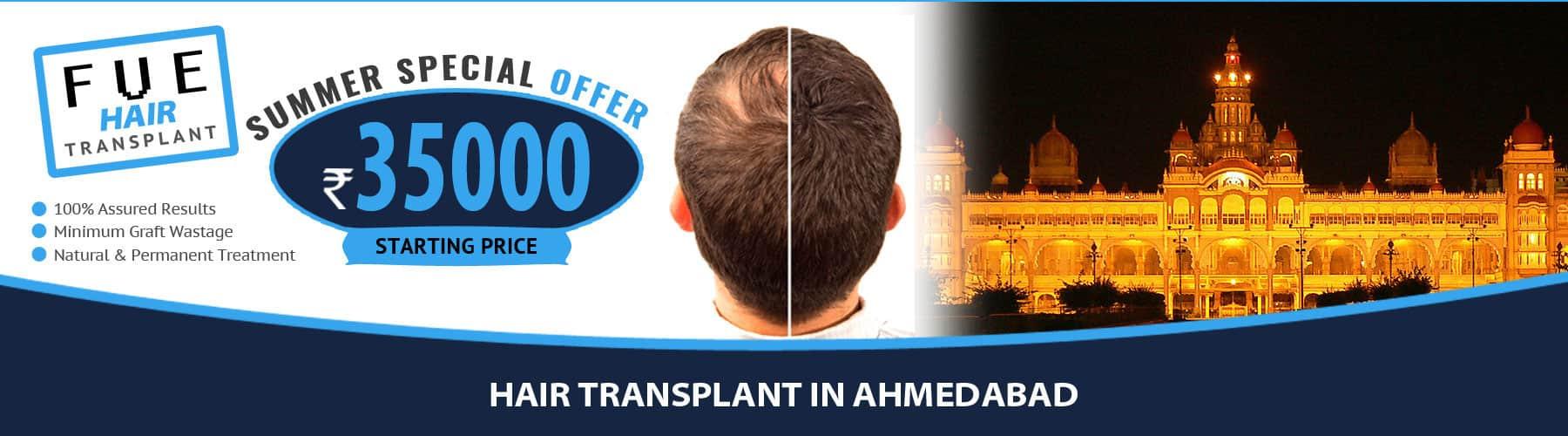 Hair Transplant Ahmedabad