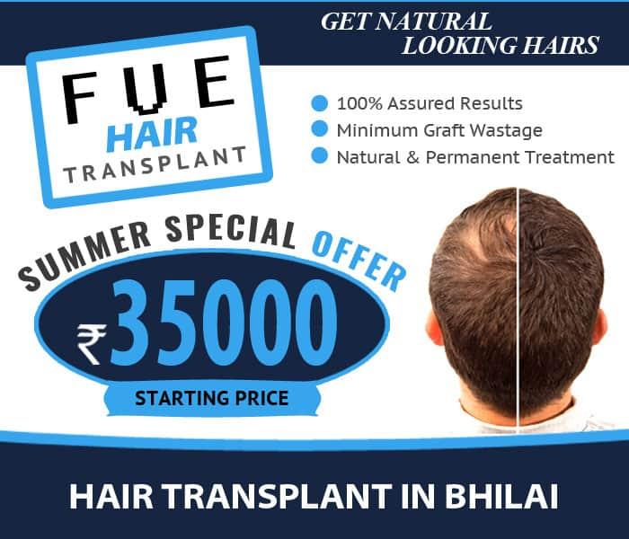 Hair Transplant Bhilai