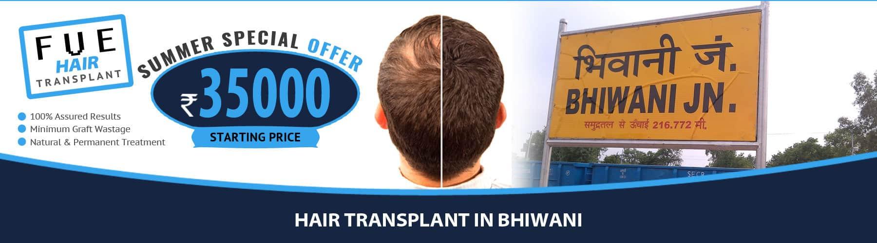 Hair Transplant Bhiwani