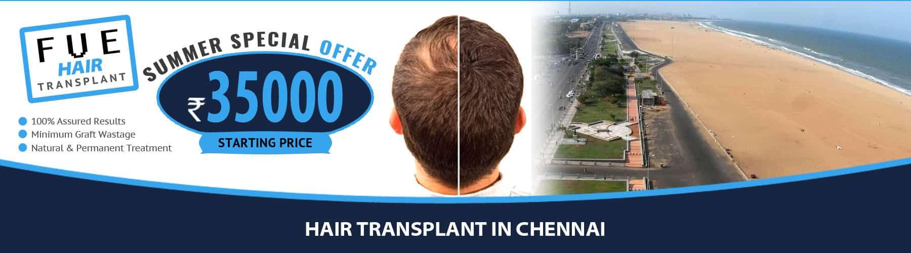Hair Transplant Chennai