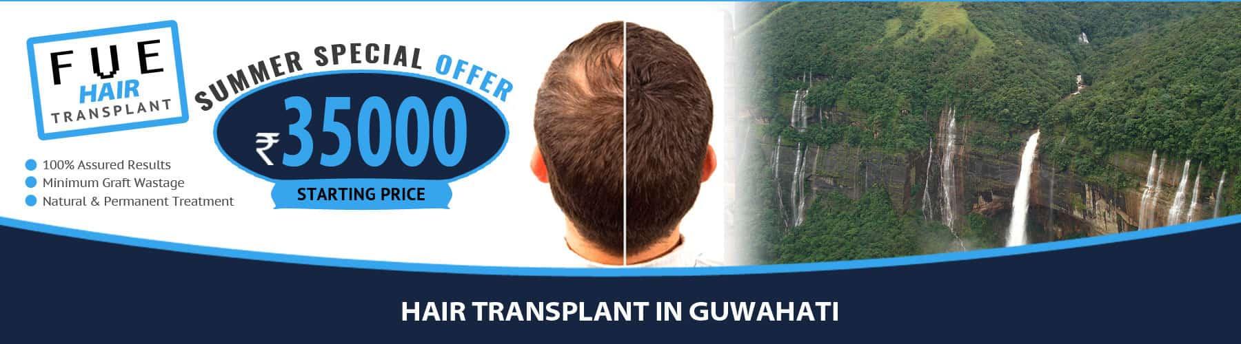Hair Transplant Guwahati