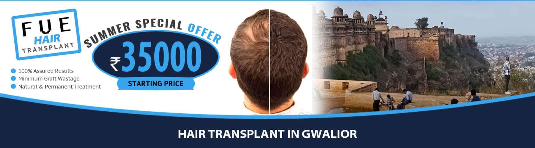Hair Transplant Gwalior