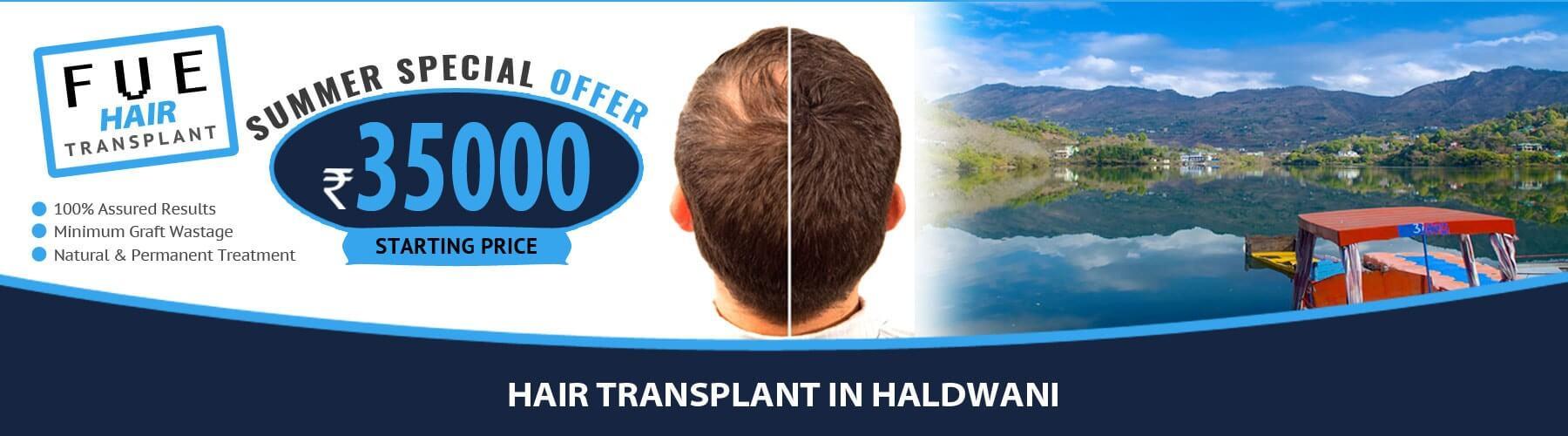 Hair Transplant Haldwani
