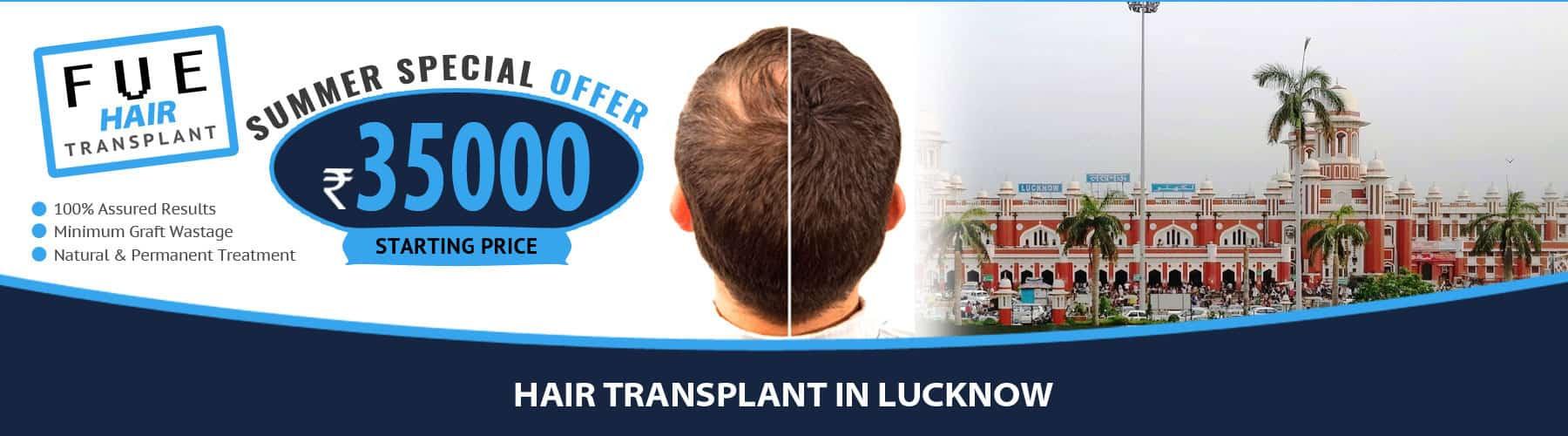 Hair Transplant Lucknow