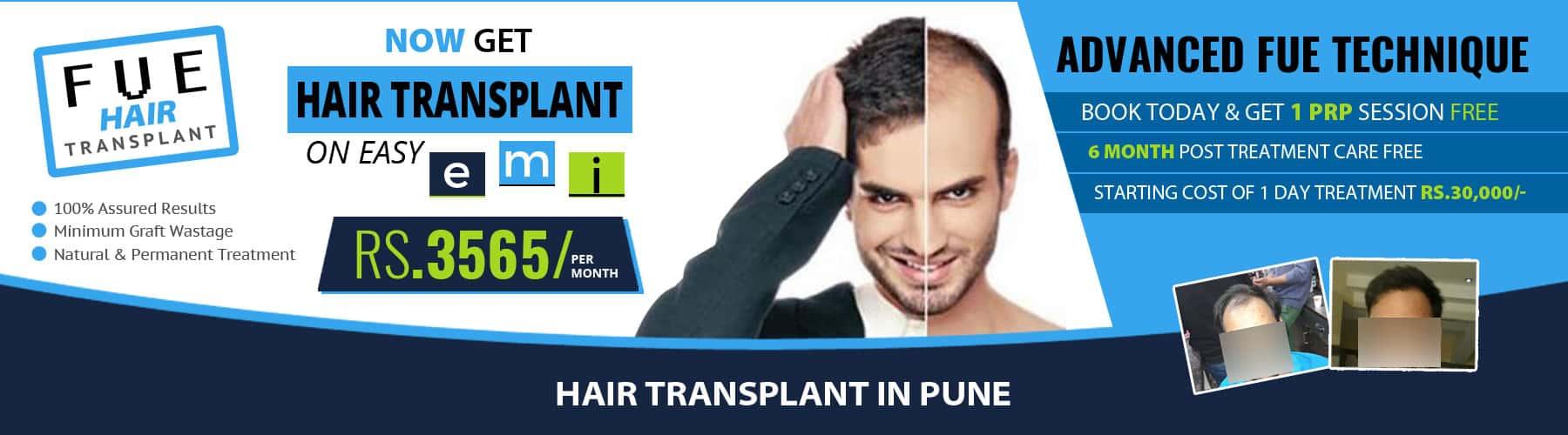 Hair Transplant Pune