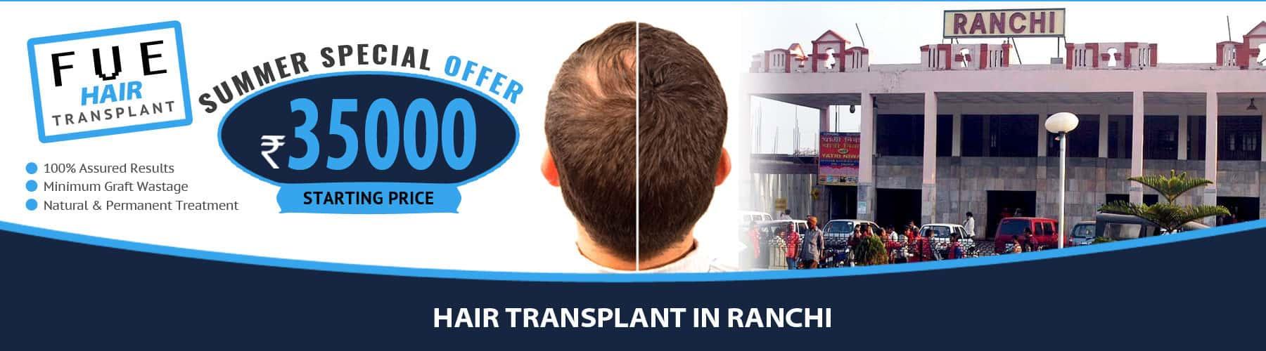 Hair Transplant Ranchi