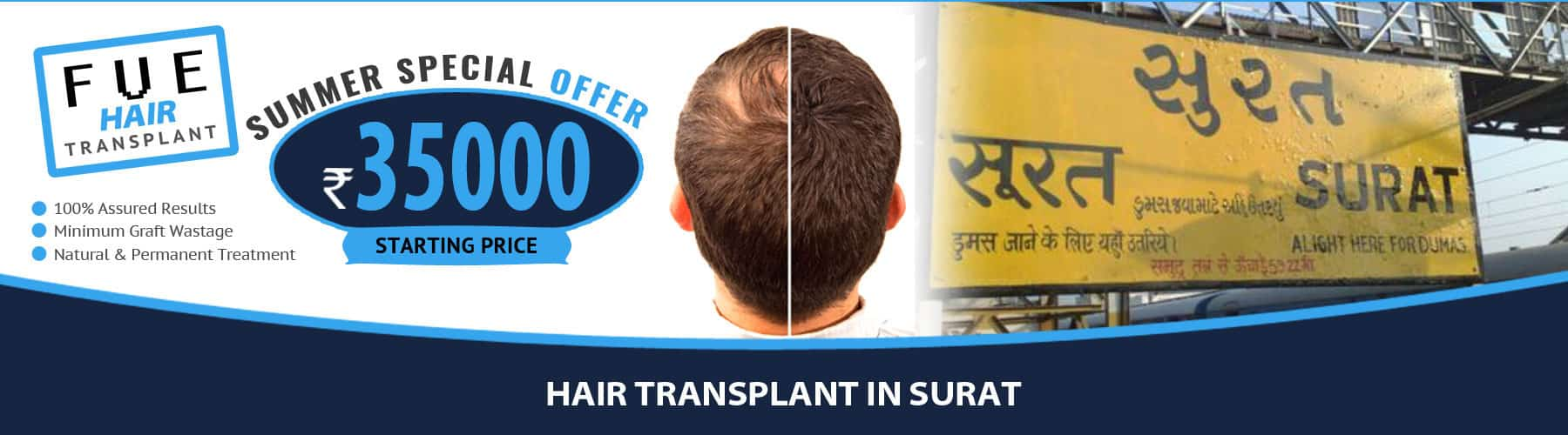 Hair Transplant Surat