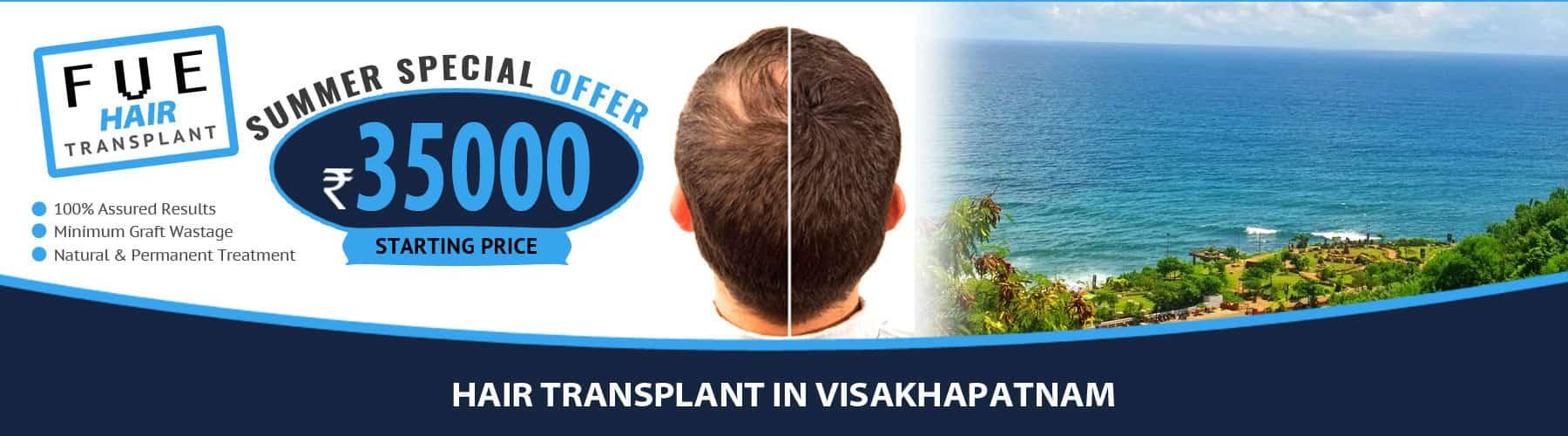 Hair Transplant Visakhapatnam