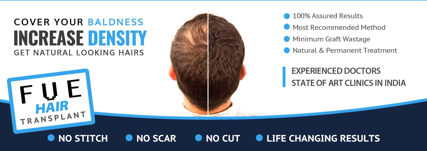 Hair Transplant in Chakradharpur