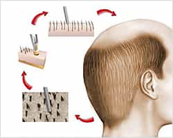 FUE Hair Transplant in Kochi