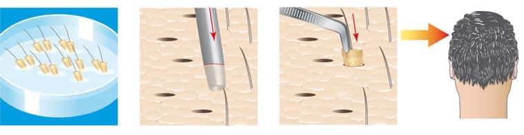 FUE Hair Transplant in Bangalore