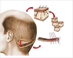 FUT Hair Transplant in Kochi