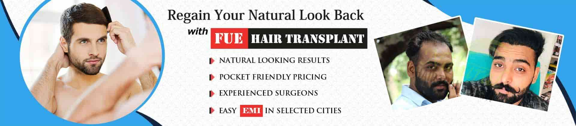 Hair Transplant in dhanbad