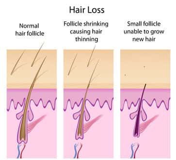 Cauese of Hair Loss