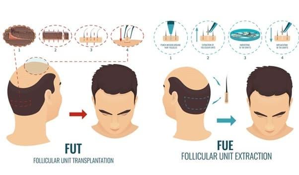 Hair Transplant in Coimbatore, Tamil Nadu - Cost   Clinics   NHT