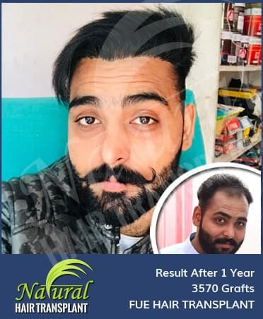 Hair Transplant Results of 3570 Grafts