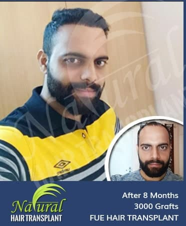 Hair Transplant Results of 3200 Grafts
