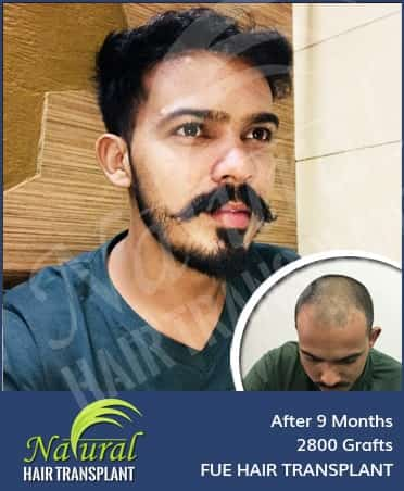 Hair Transplant Results of 2800 Grafts
