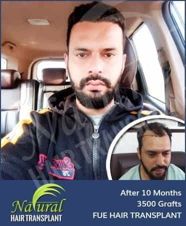 Hair Transplant Results of 4500 Grafts