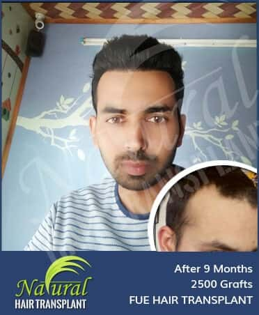 Hair Transplant Results of 2500 Grafts