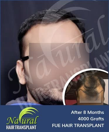 Hair Transplant Results of 4000 Grafts