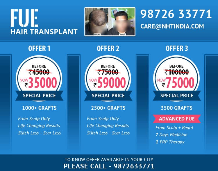 Hair Transplant Special Offers