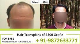 Hair Transplant Result of 3500 Grafts