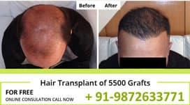Hair Transplant Result of 5500 Grafts