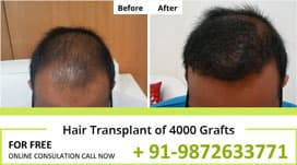 Hair Transplant Result of 4000 Grafts