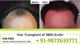 Before After Hair Transplant Results in Chandigarh