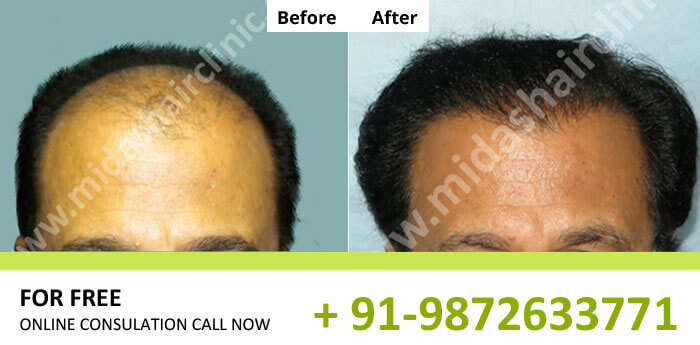 Hair Transplant Results in Bangalore