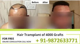 http://naturalhairtransplant.co.in/results/new/results2.jpg