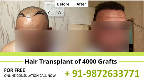 Hair Transplant Results
